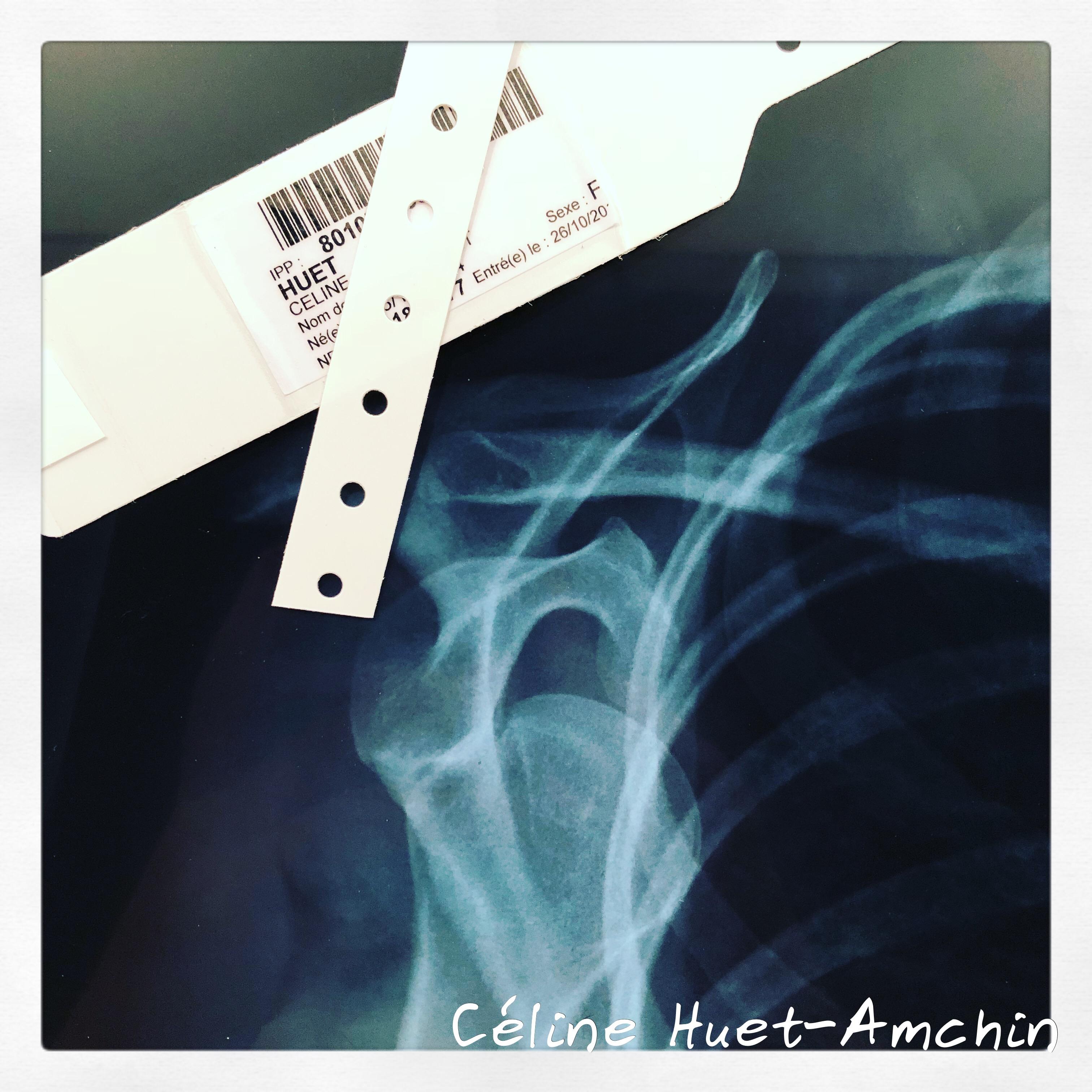 Urgences Hôpital Henri Mondor Créteil luxation épaule gauche